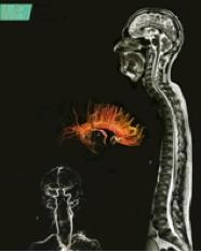 https://www.zdrav.kz/images/diagnostics/diagnostics_pic17.png
