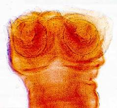 Картинки по запросу финна бычьего цепня под микроскопом