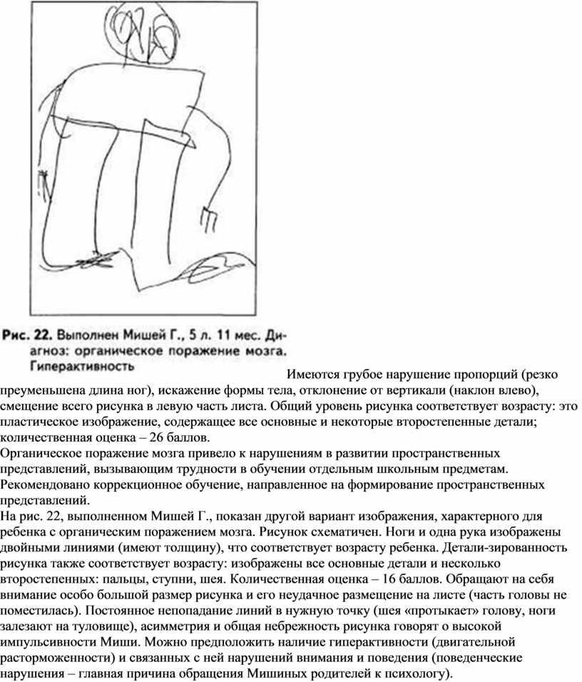 Имеются грубое нарушение пропорций (резко преуменьшена длина ног), искажение формы тела, отклонение от вертикали (наклон влево), смещение всего рисунка в левую часть листа