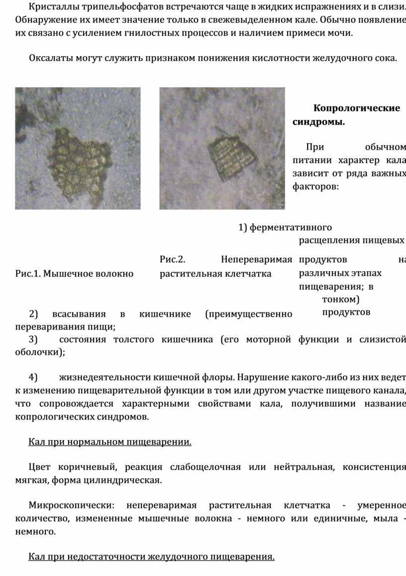 Кристаллы трипельфосфатов встречаются чаще в жидких испражнениях и в слизи