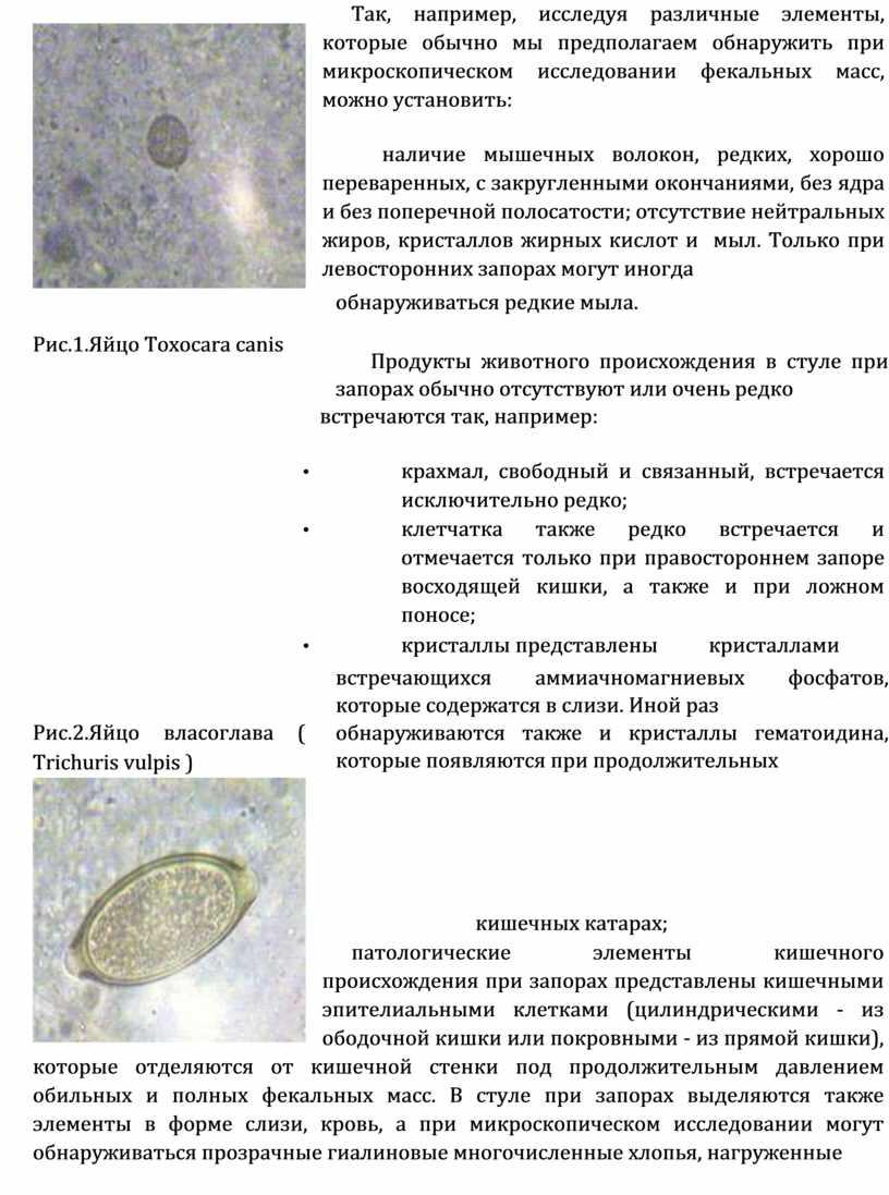 Так, например, исследуя различные элементы, которые обычно мы предполагаем обнаружить при микроскопическом исследовании фекальных масс, можно установить: наличие мышечных волокон, редких, хорошо переваренных, с закругленными…