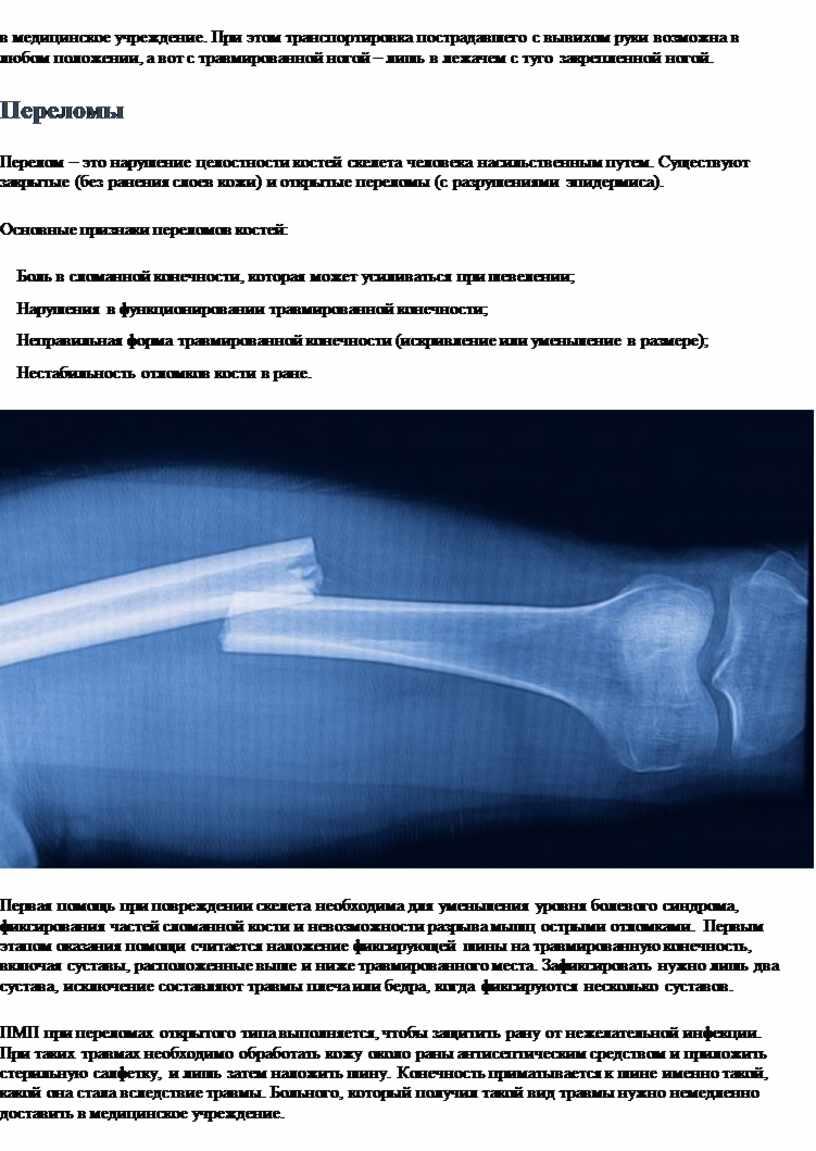 При этом транспортировка пострадавшего с вывихом руки возможна в любом положении, а вот с травмированной ногой – лишь в лежачем с туго закрепленной ногой