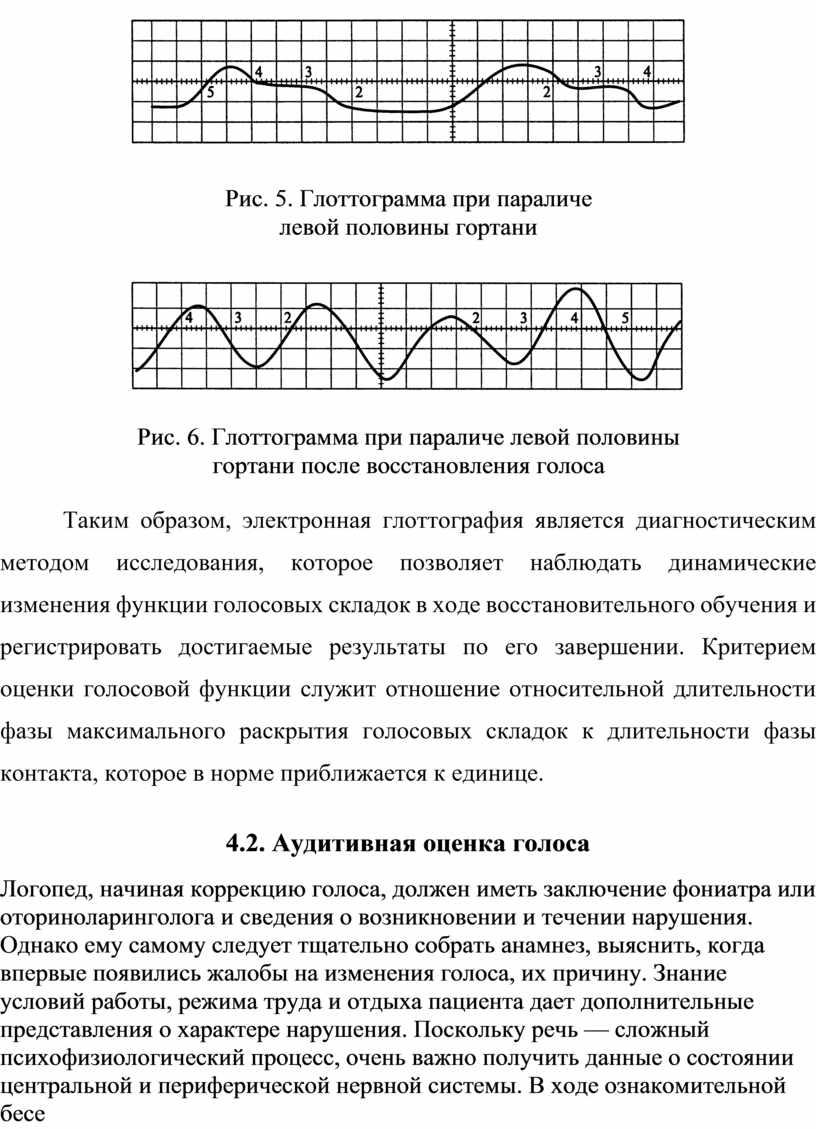 Таким образом, электронная глоттография является диагностическим методом исследования, которое позволяет наблюдать динамические изменения функции голосовых складок в ходе восстановительного обучения и регистрировать достигаемые результаты по…