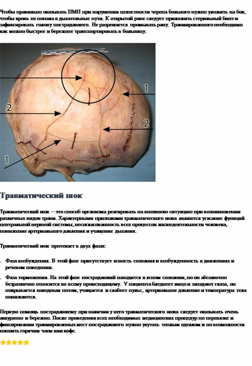 Чтобы правильно оказывать ПМП при нарушении целостности черепа больного нужно уложить на бок, чтобы кровь не попала в дыхательные пути