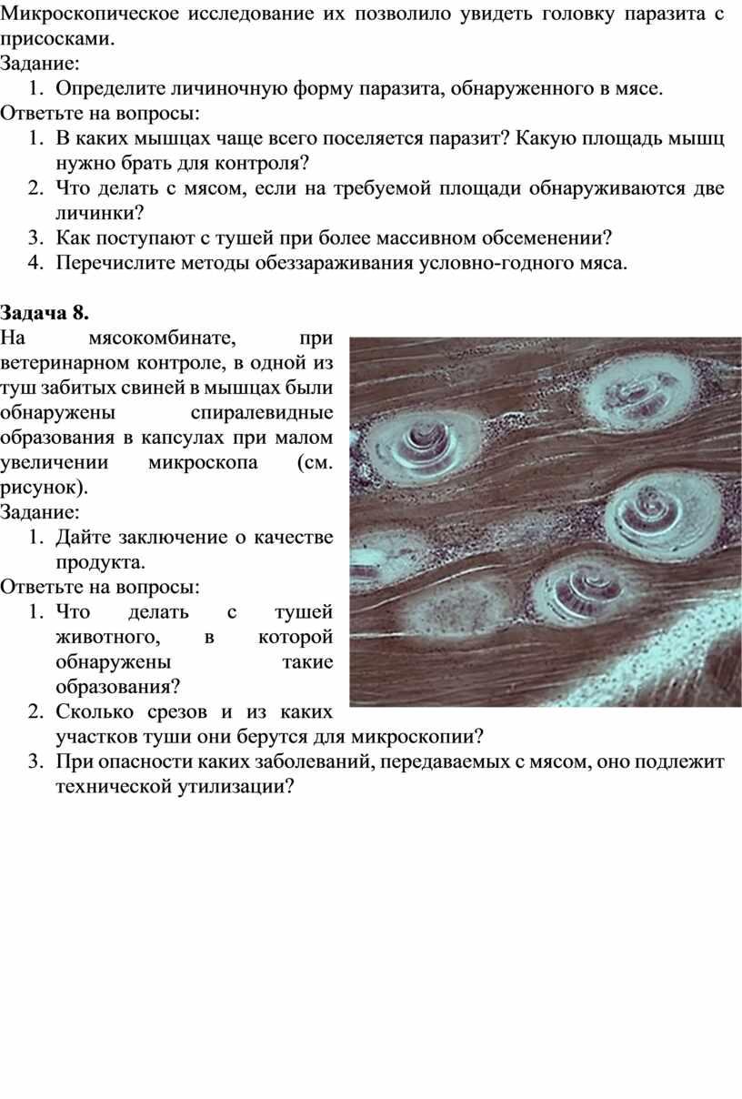 Микроскопическое исследование их позволило увидеть головку паразита с присосками