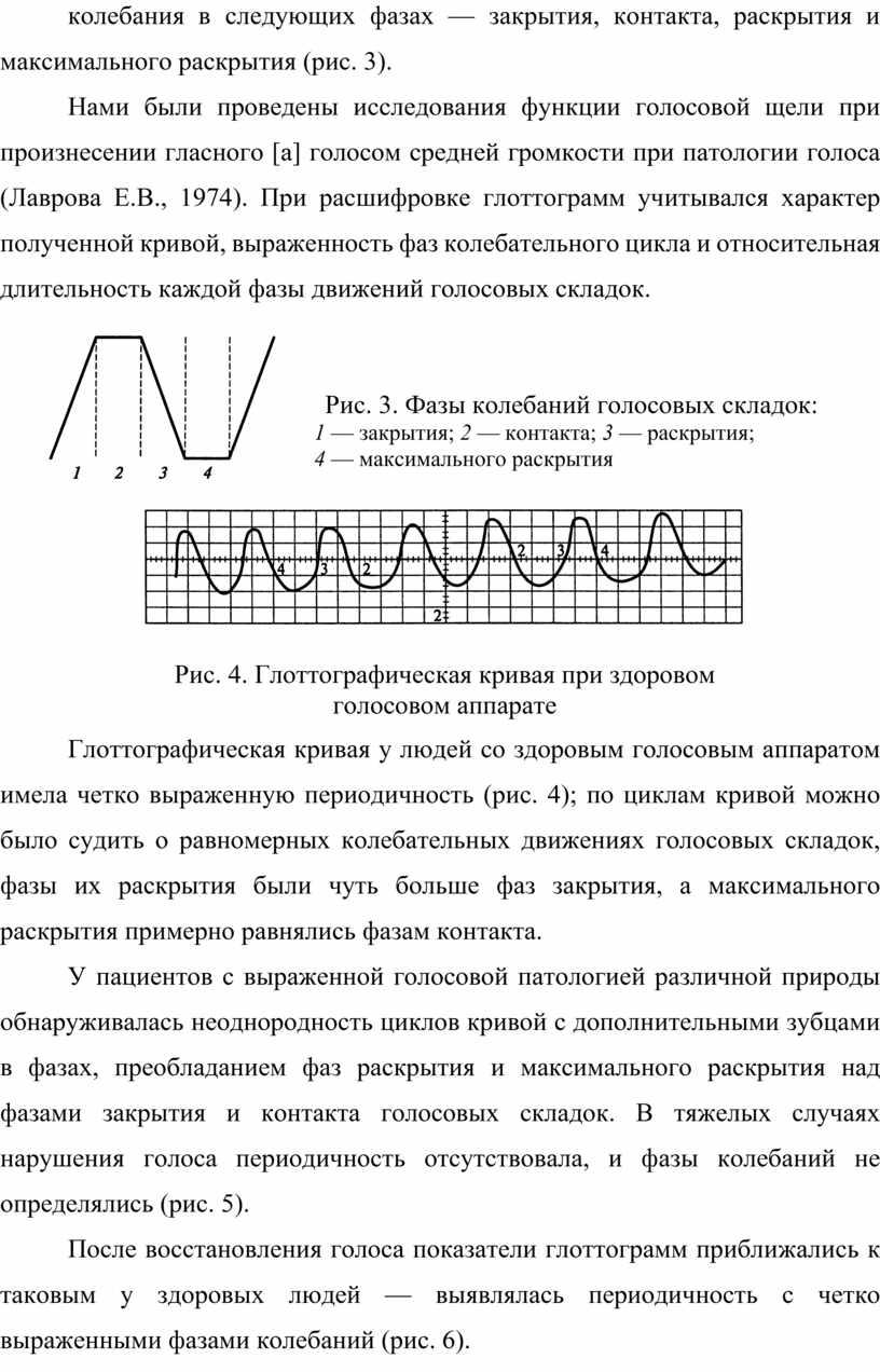 Нами были проведены исследования функции голосовой щели при произнесении гласного [а] голосом средней громкости при патологии голоса (Лаврова
