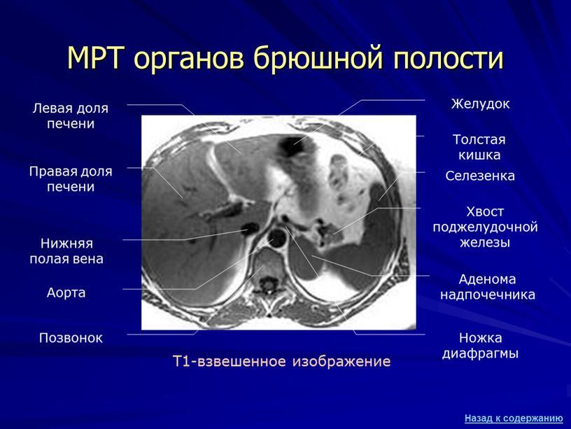МРТ органов брюшной полости Т1-взвешенное изображение