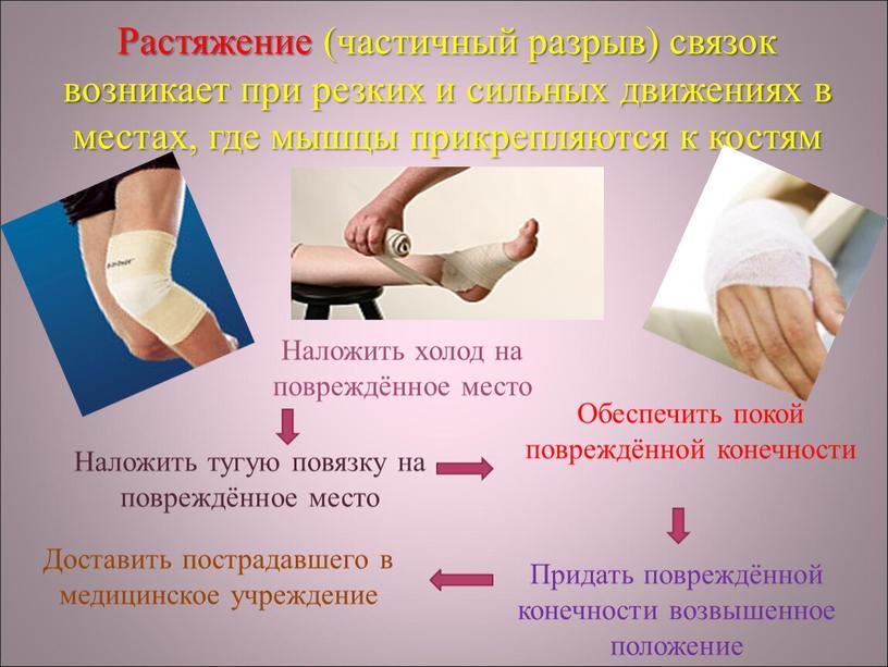Растяжение (частичный разрыв) связок возникает при резких и сильных движениях в местах, где мышцы прикрепляются к костям