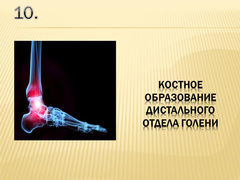 10. костное образование дистального отдела голени