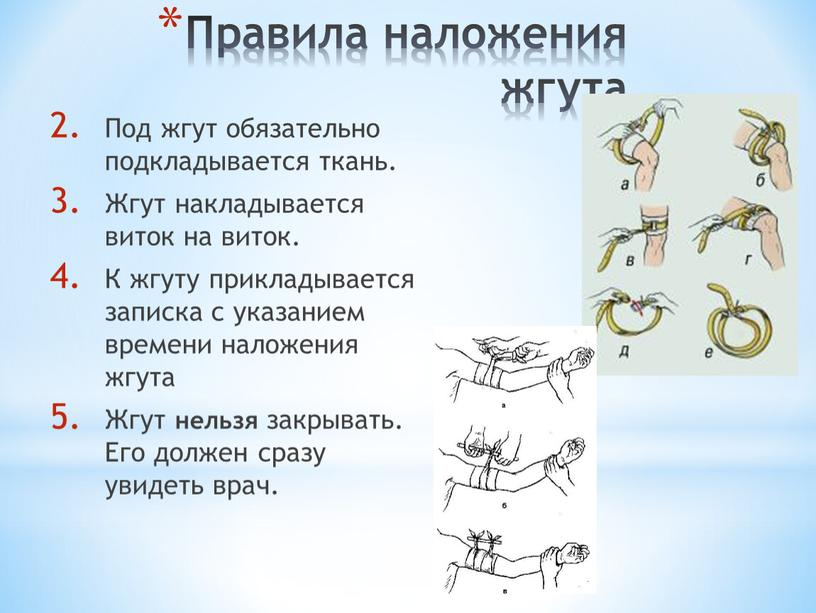 Правила наложения жгута Под жгут обязательно подкладывается ткань