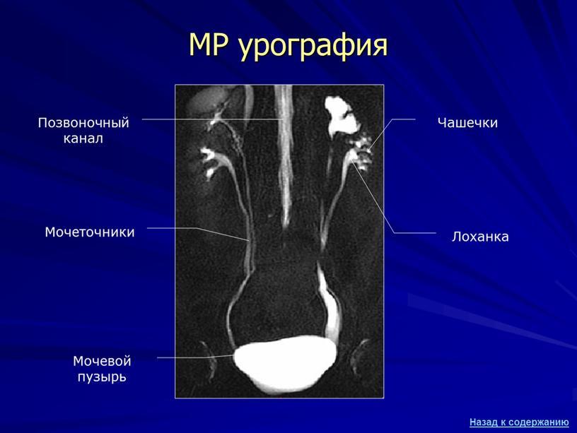МР урография Мочевой пузырь Мочеточники