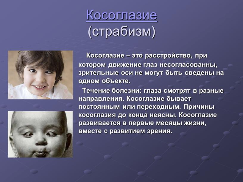 Косоглазие (страбизм) Косоглазие – это расстройство, при котором движение глаз несогласованны, зрительные оси не могут быть сведены на одном объекте