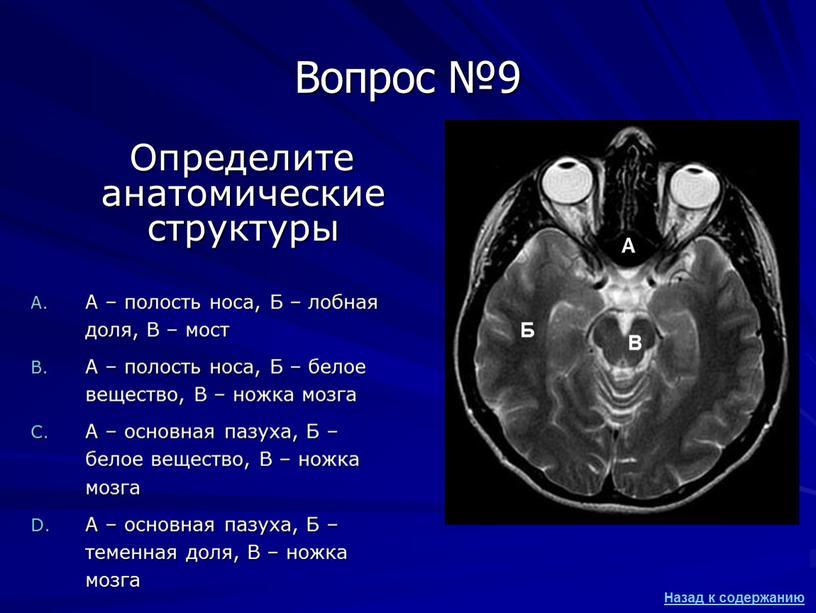 Вопрос №9 Определите анатомические структуры