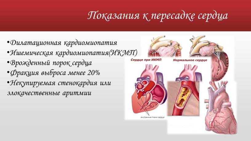 Показания к пересадке сердца Дилатационная кардиомиопатия