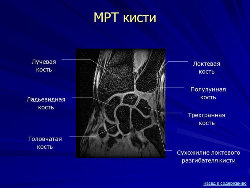 МРТ кисти Лучевая кость Локтевая кость