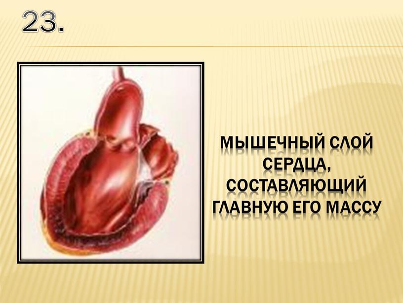 23. мышечный слой сердца, составляющий главную его массу