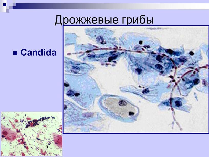 Дрожжевые грибы Candida