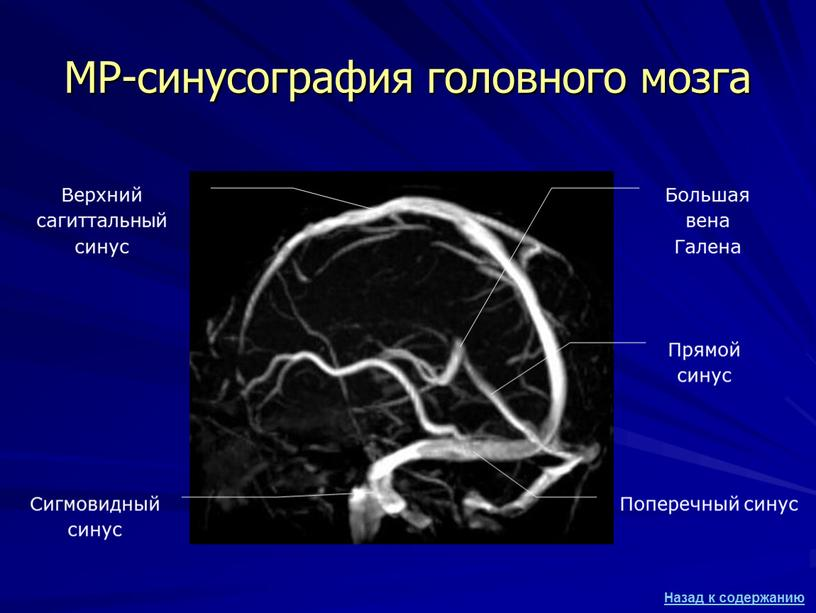 МР-синусография головного мозга