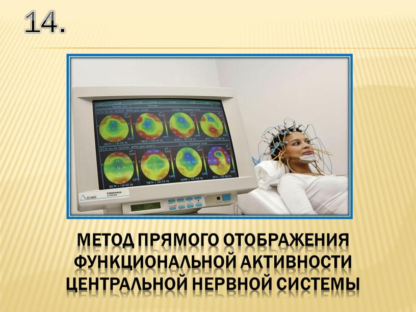 14. метод прямого отображения функциональной активности ЦЕНТРАЛЬНОЙ НЕРВНОЙ системы