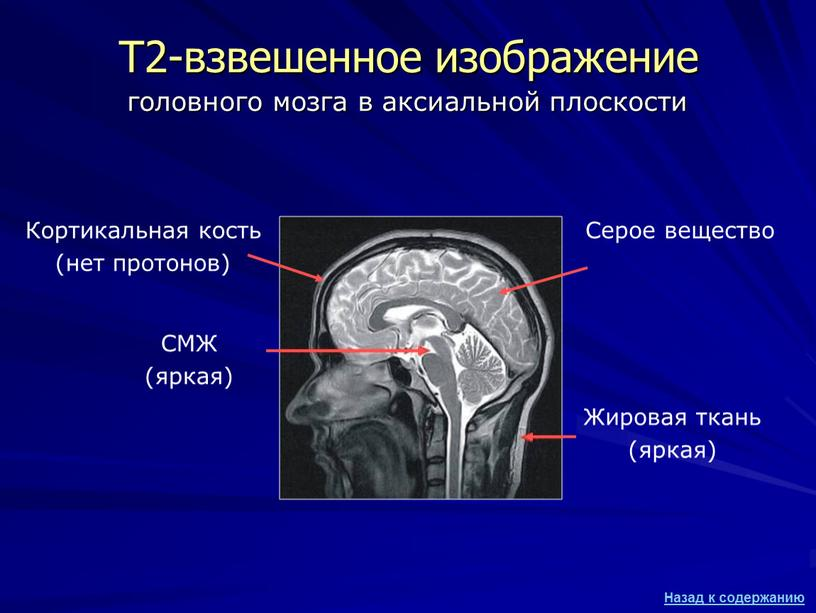 Т2-взвешенное изображение СМЖ (яркая)