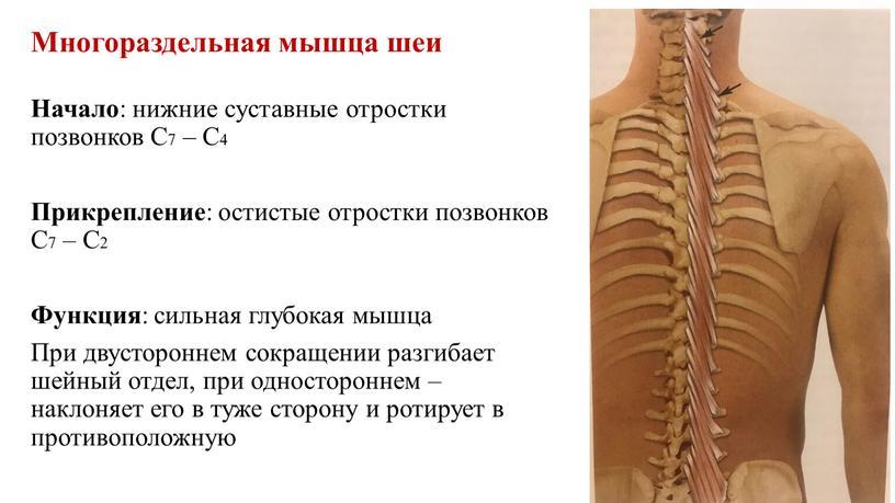 Многораздельная мышца шеи Начало : нижние cуставные отростки позвонков