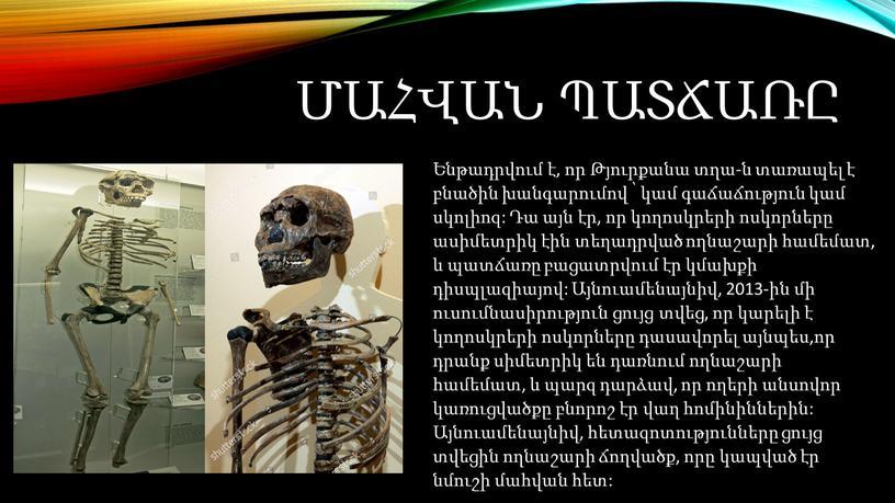 Ենթադրվում է, որ Թյուրքանա տղա-ն տառապել է բնածին խանգարումով ՝ կամ գաճաճություն կամ սկոլիոզ: Դա այն էր, որ կողոսկրերի ոսկորները ասիմետրիկ էին տեղադրված ողնաշարի համեմատ,…