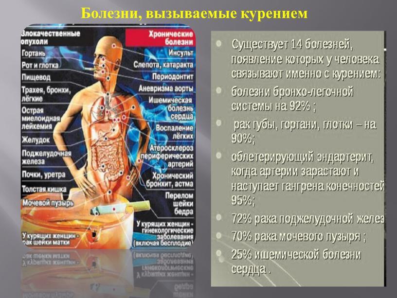 Болезни, вызываемые курением