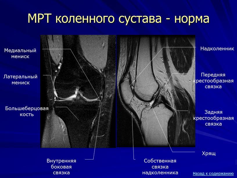 МРТ коленного сустава - норма Большеберцовая кость