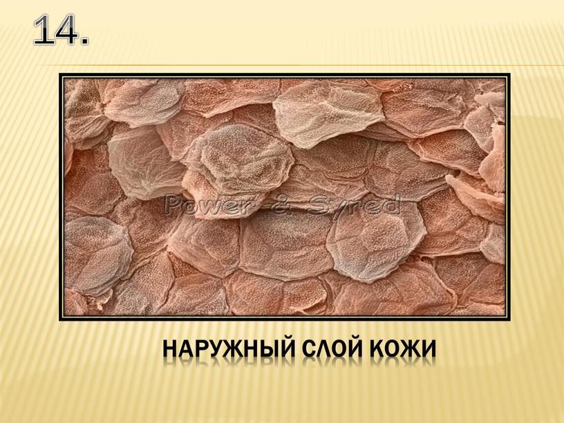14. наружный слой кожи
