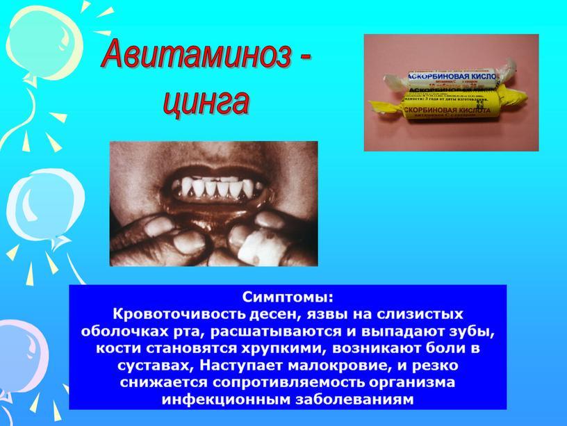 Авитаминоз - цинга Симптомы: