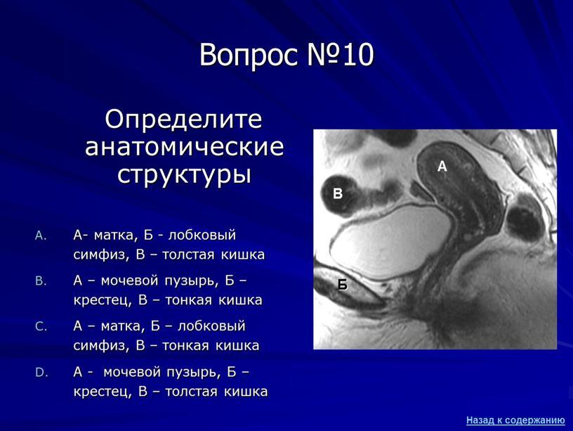 Вопрос №10 Определите анатомические структуры