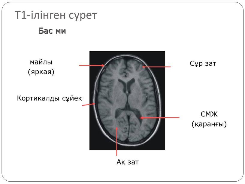 Т1-ілінген сурет майлы (яркая)
