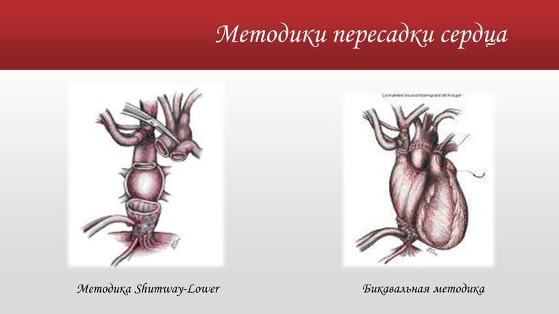 Методики пересадки сердца Методика