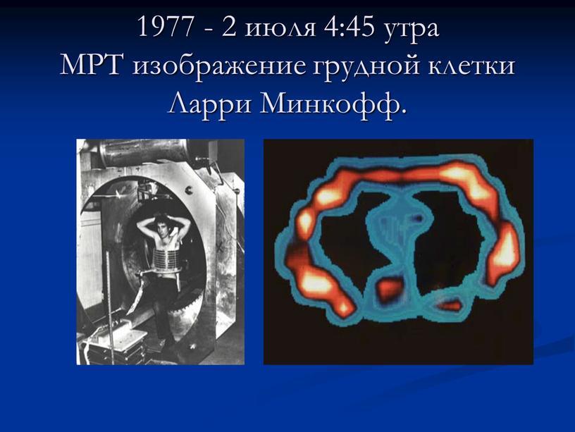МРТ изображение грудной клетки