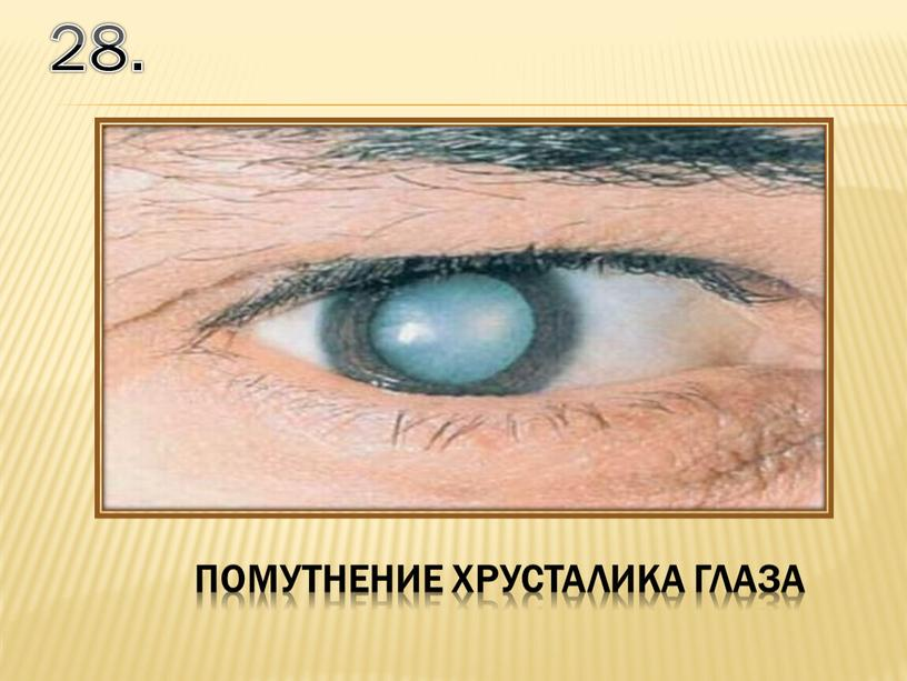 28. помутнение хрусталика глаза