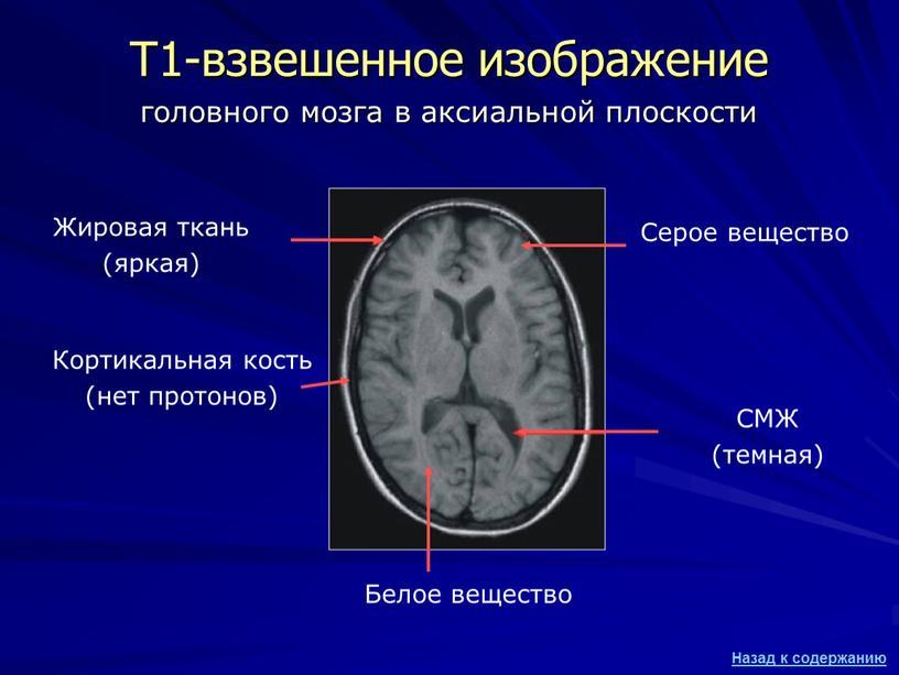Т1-взвешенное изображение Жировая ткань (яркая)