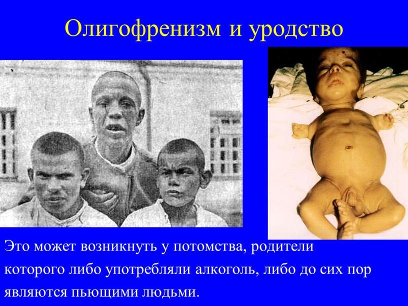 Олигофренизм и уродство Это может возникнуть у потомства, родители которого либо употребляли алкоголь, либо до сих пор являются пьющими людьми