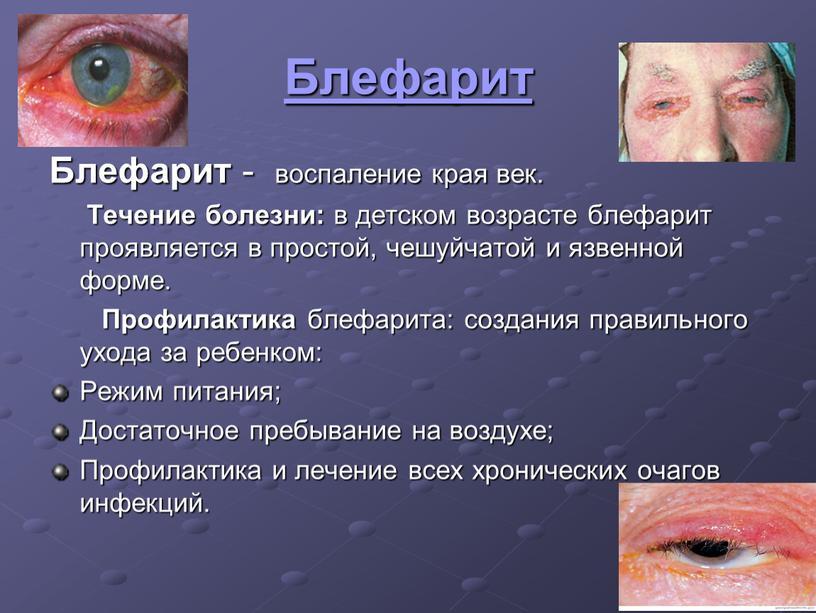 Блефарит Блефарит - воспаление края век
