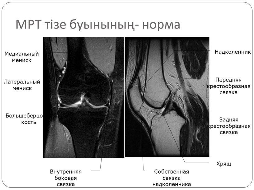 МРТ тізе буынының- норма Большеберцовая кость