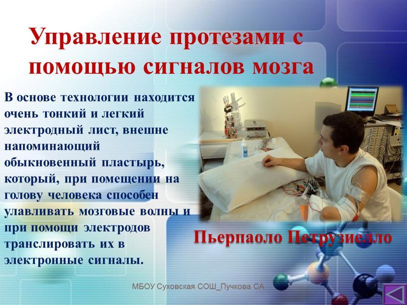 Управление протезами с помощью сигналов мозга