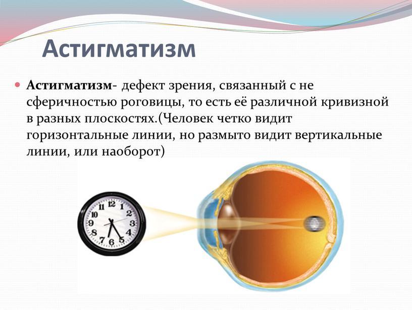 Астигматизм - дефект зрения, связанный с не сферичностью роговицы, то есть её различной кривизной в разных плоскостях