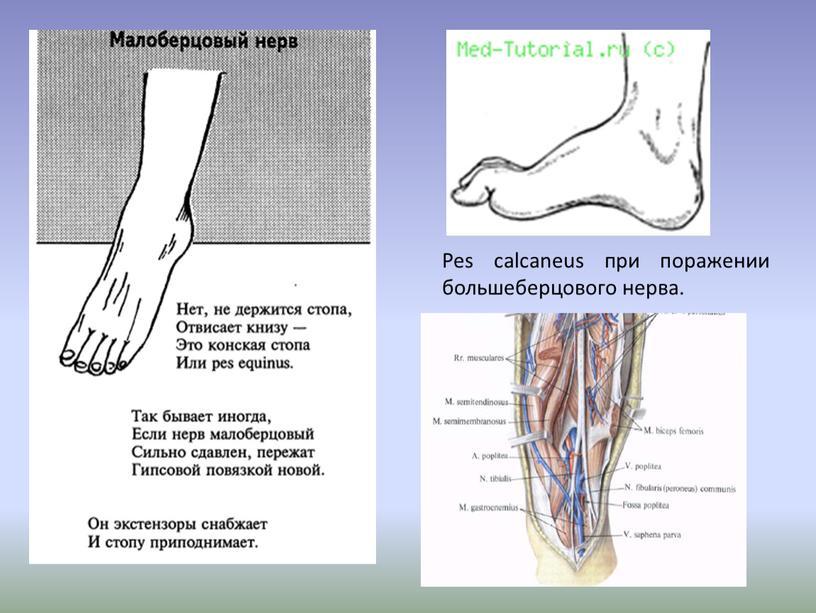 Pes calcaneus при поражении большеберцового нерва
