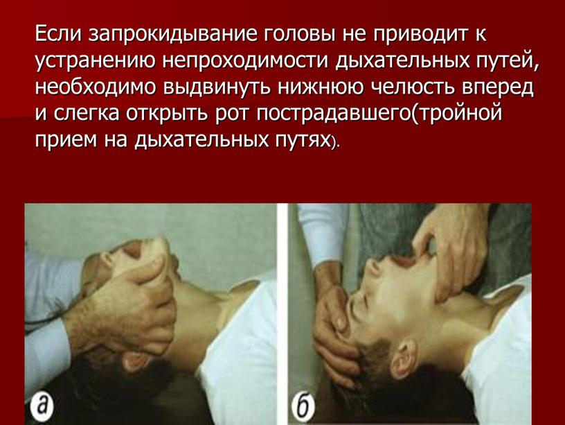 Если запрокидывание головы не приводит к устранению непроходимости дыхательных путей, необходимо выдвинуть нижнюю челюсть вперед и слегка открыть рот пострадавшего(тройной прием на дыхательных путях)