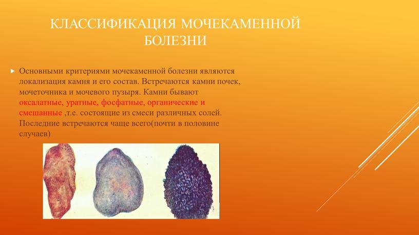 Классификация мочекаменной болезни