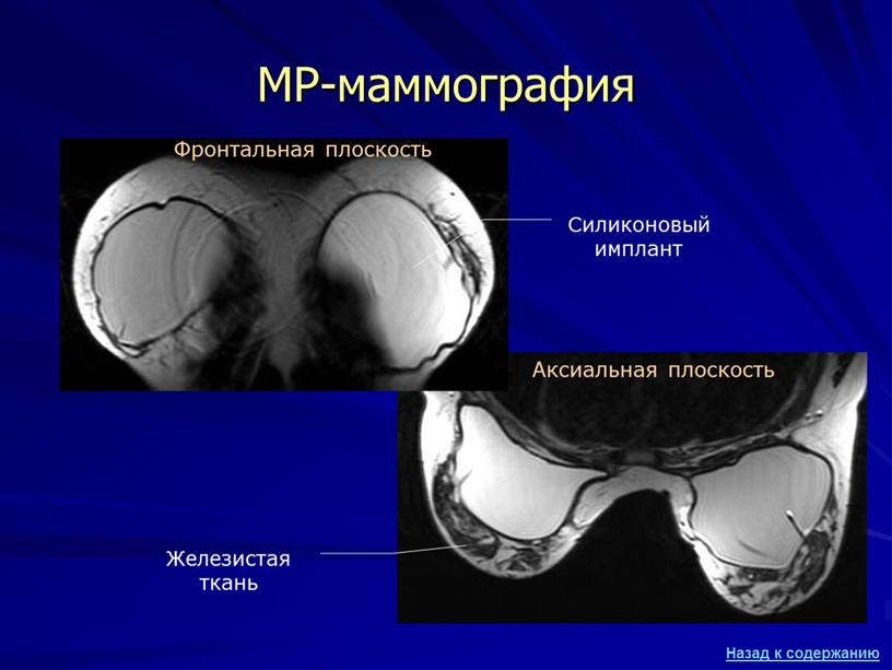 МР-маммография Силиконовый имплант