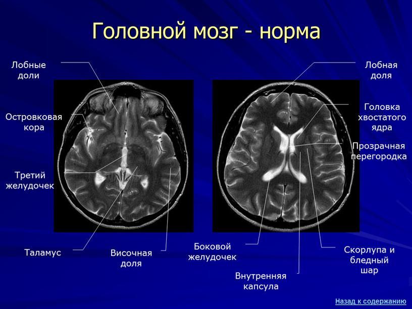 Головной мозг - норма Лобные доли
