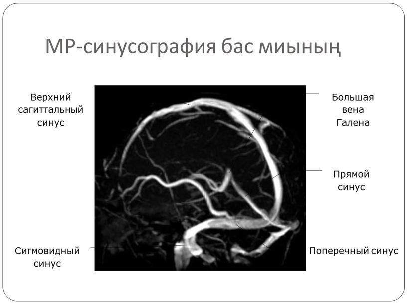 МР-синусография бас миының Верхний сагиттальный синус
