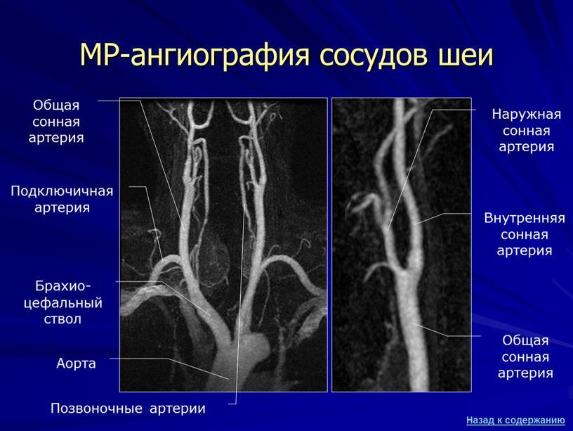 МР-ангиография сосудов шеи Аорта