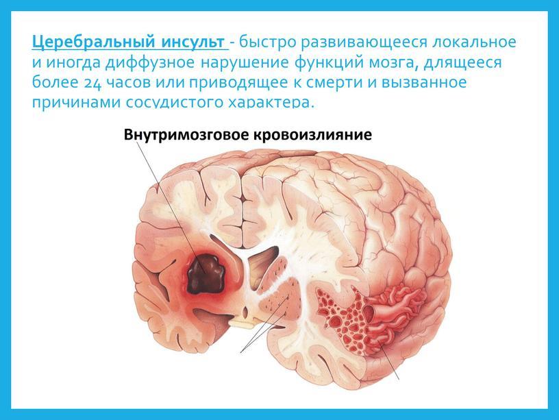 Церебральный инсульт - быстро развивающееся локальное и иногда диффузное нарушение функций мозга, длящееся более 24 часов или приводящее к смерти и вызванное причинами сосудистого характера