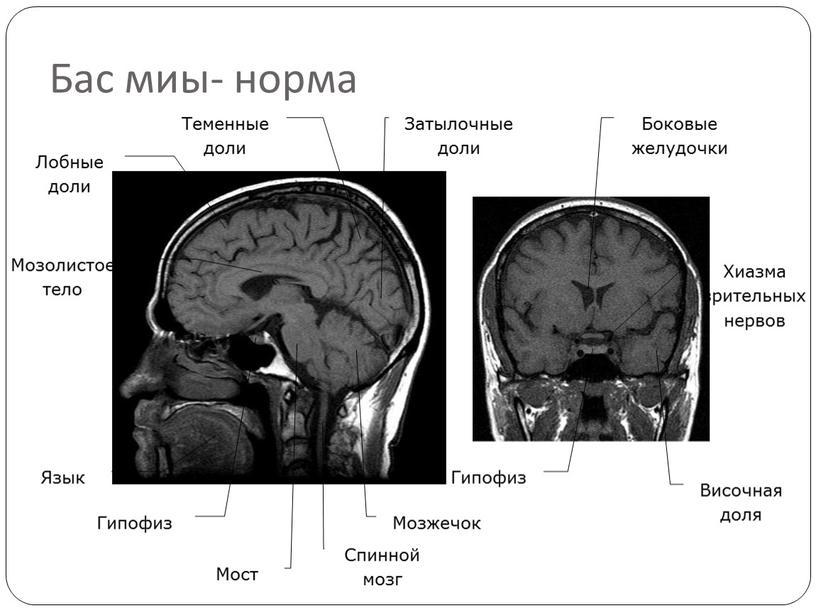 Бас миы- норма Язык Спинной мозг